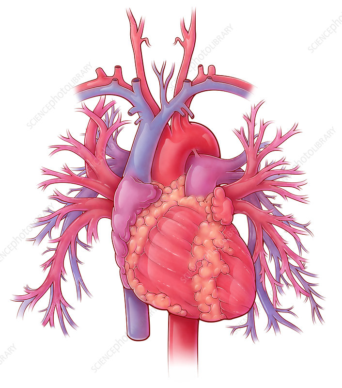 Heart and Pulmonary Vessels, Illustration