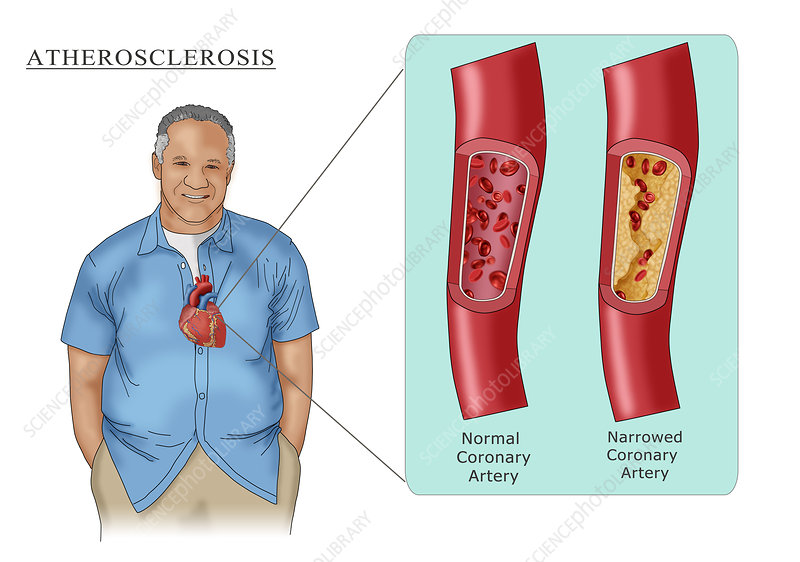 Man with Heart Disease, Illustration