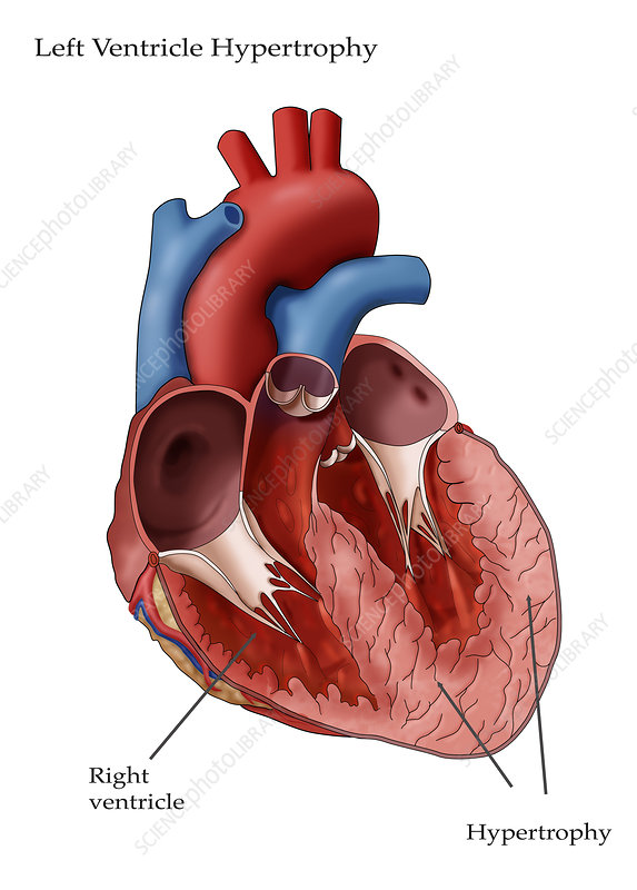 Left Ventricle Hypertrophy, Illustration