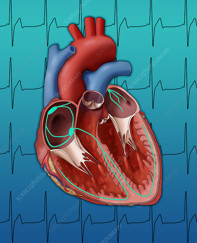 Heart's Electrical System, Illustration