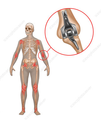 Elbow Joint Replacement, Illustration