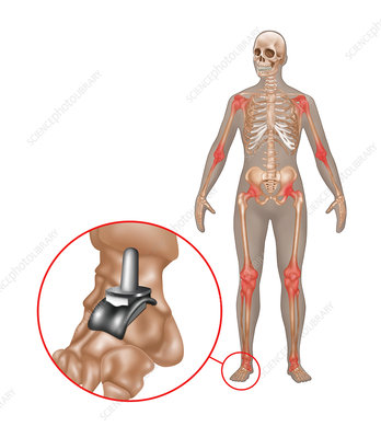 Ankle Joint Replacement, Illustration