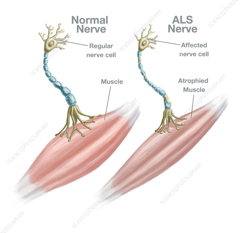 Normal Nerve and ALS Nerve, Illustration