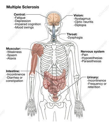 Multiple Sclerosis Symptoms, Illustration