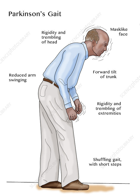 Man with Parkinson's, Illustration