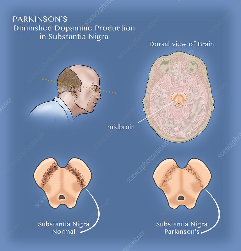Parkinson Substantia Nigra, Illustration