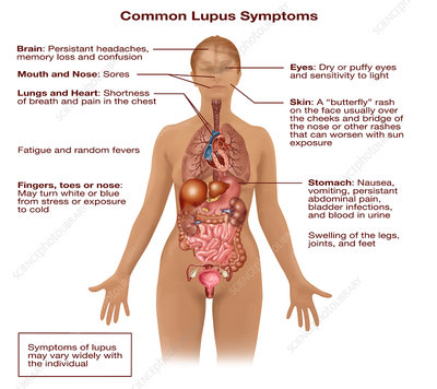 Common Lupus Symptoms, Illustration