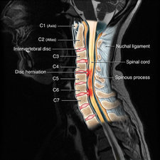 medicine diseases ailments injuries burns scars muscle ... mri spine diagram