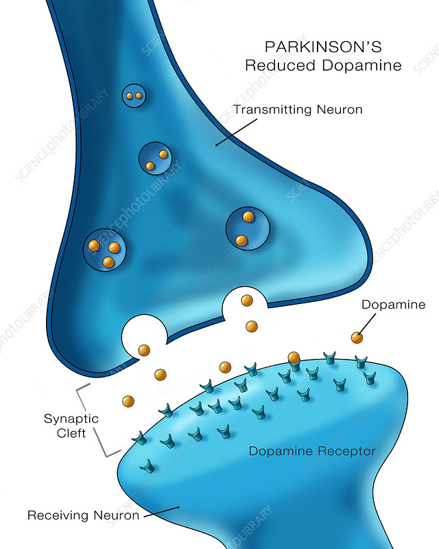Dopamine in Parkinson's, Illustration