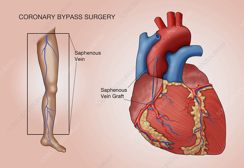 Coronary Bypass Surgery, Illustration