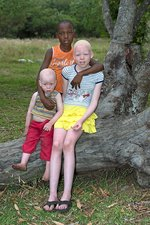 Albino siblings with their black brother