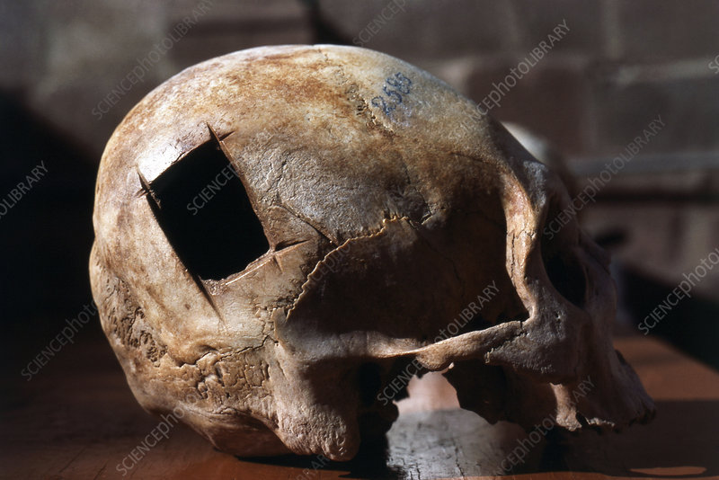 Incan Skull, Cranial Surgery, Cusco, Peru