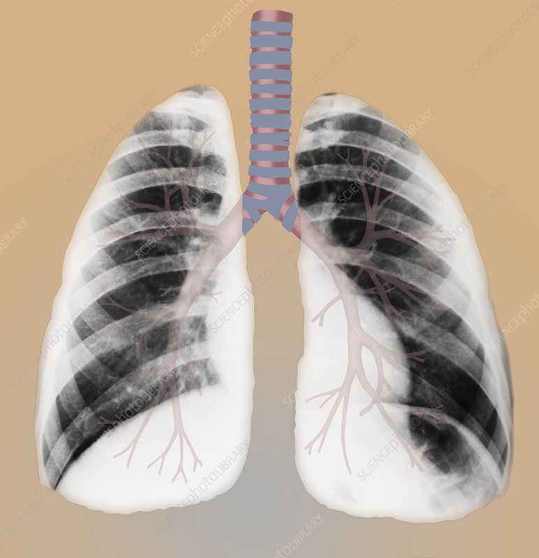 Normal lungs, illustration