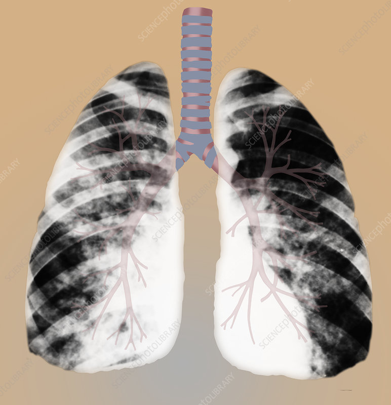 Pneumonia, illustration
