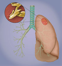 Tuberculosis and granulomas, illustration