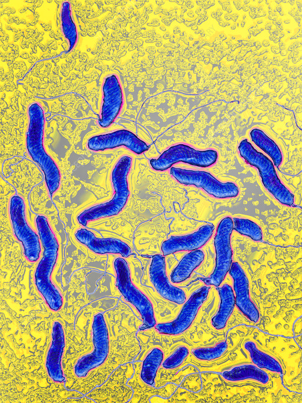 Helicobacter pylori bacteria, LM