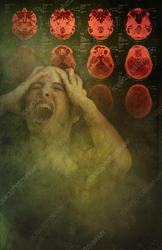 Intense Pain, illustration