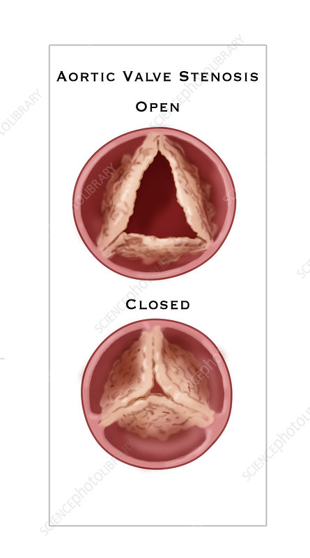 Aortic Valve Stenosis, illustration