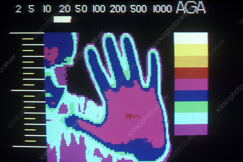 Thermogram of Hand