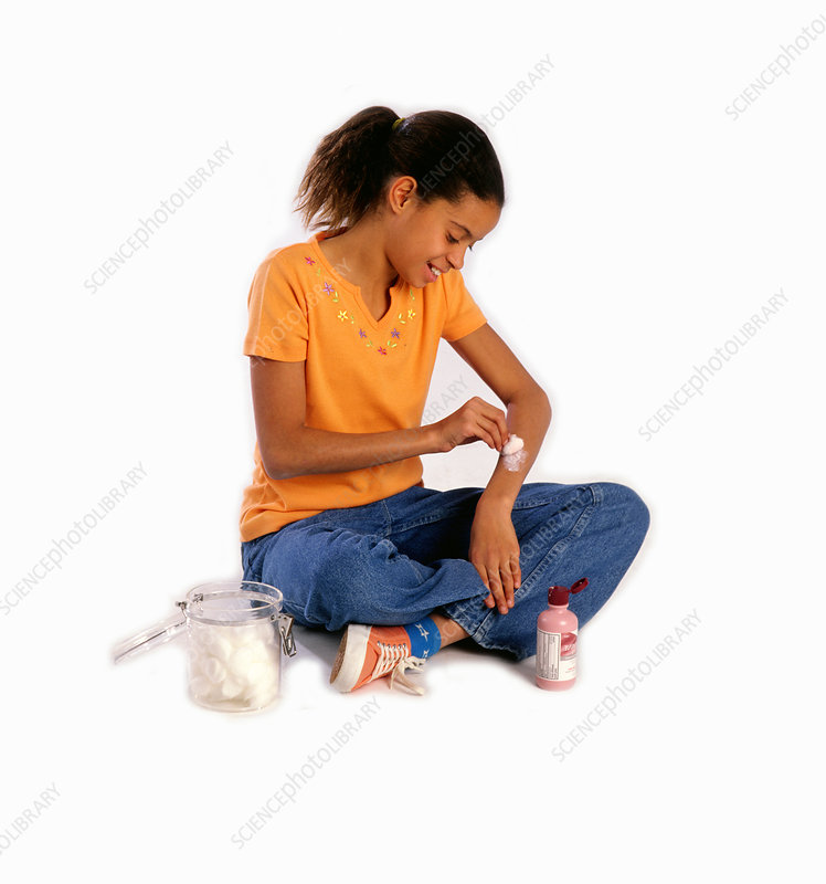 10 year Old Girl Applying Calamine Lotion