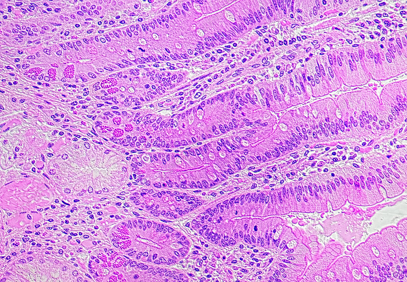Duodenum wall, TS for Paneth cells
