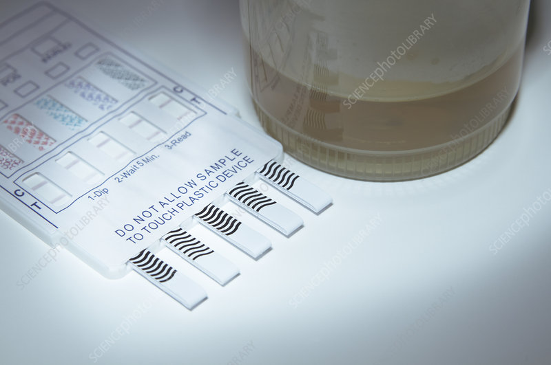 Drug Screening Test