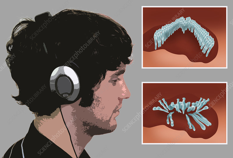 Hearing Protection, illustration