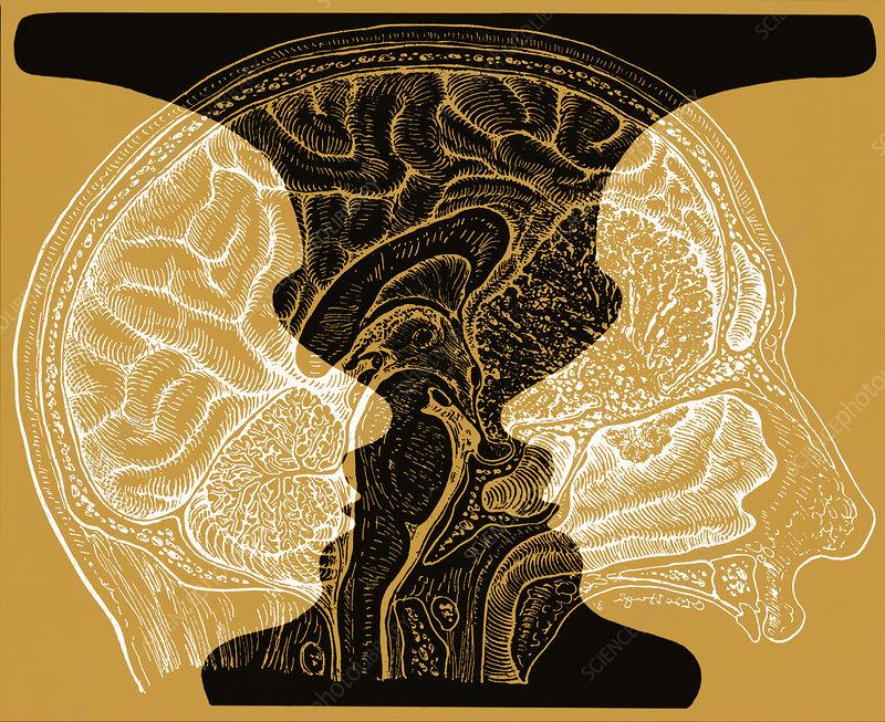 Rubin Vase And Brain Illustration Stock Image C0280649 Science