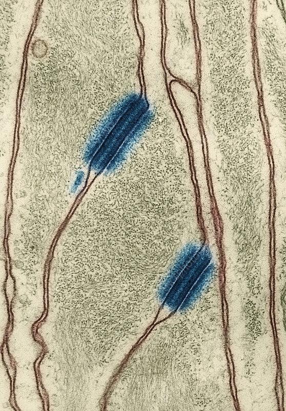 Desmosomes in an Invertebrate, TEM