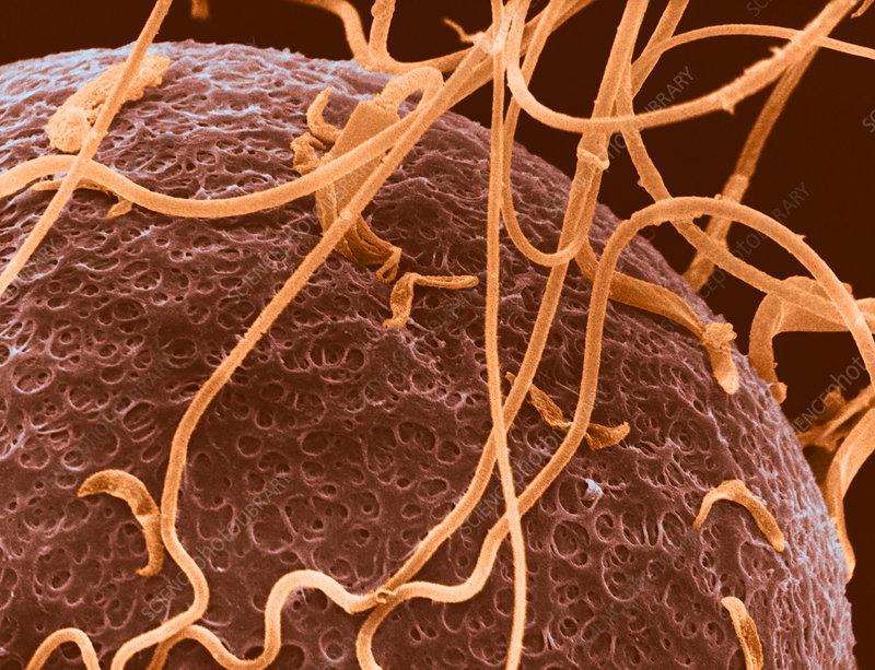 SEM of Human Sperm on Zona Pellucida