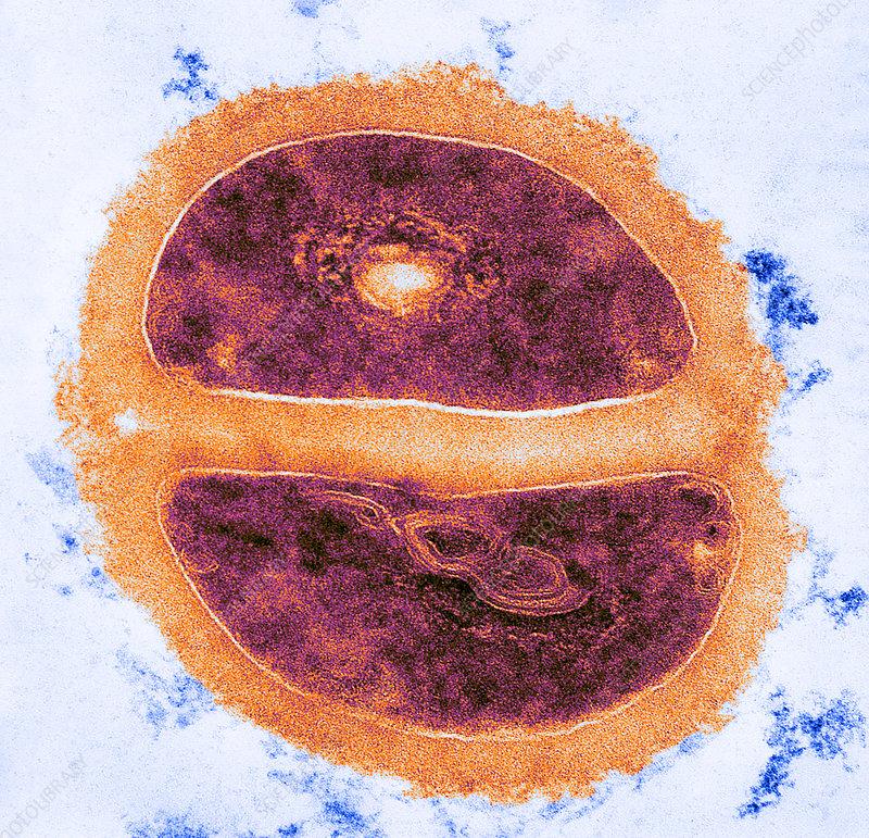 Micrococcus lysodelkticus, TEM