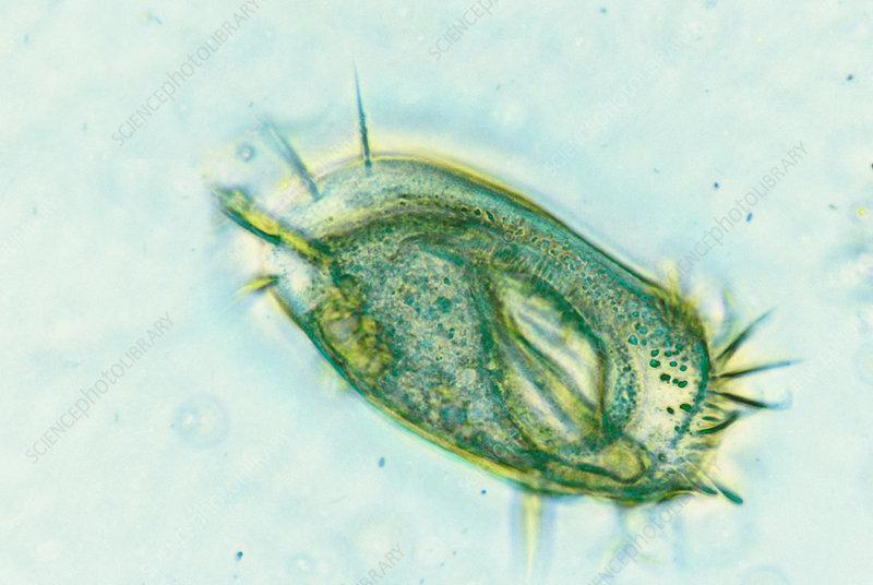 Stylonychia pustulata (LM)