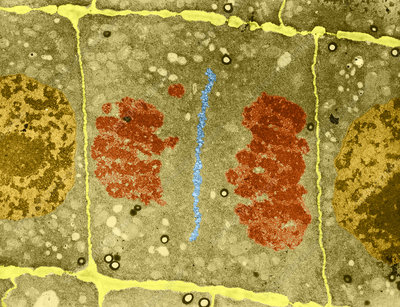 Mitosis in Plant Cell, TEM