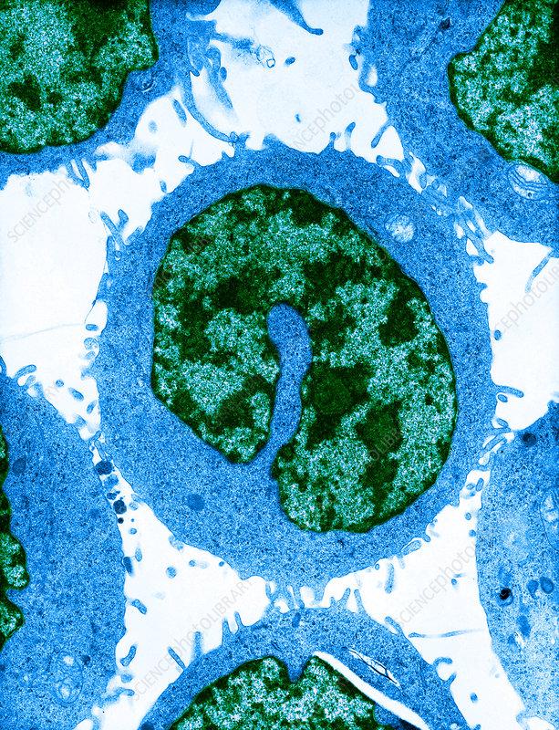 Cancer Cells (TEM)