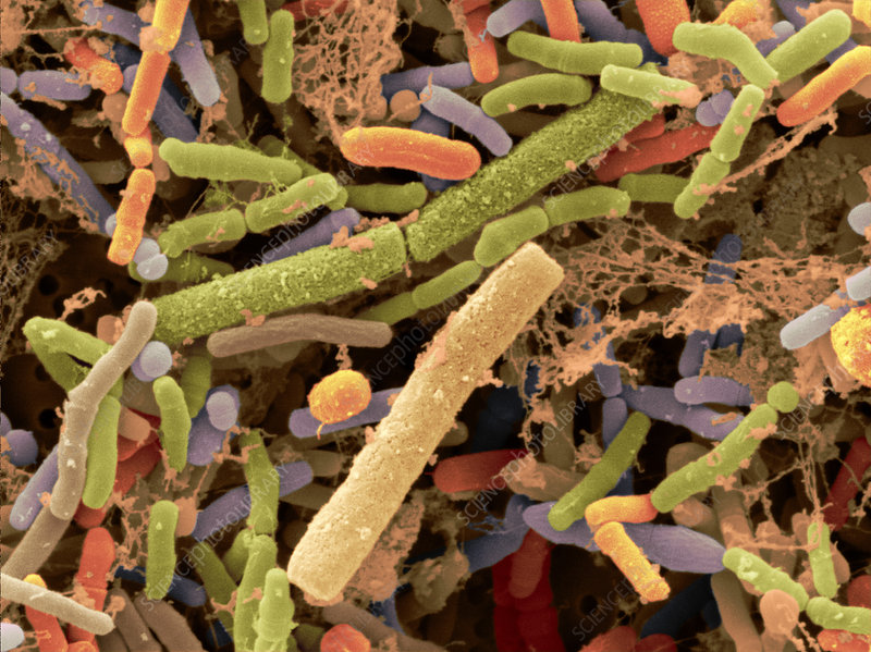 Toddler's Feces with Bifidobacteria, SEM