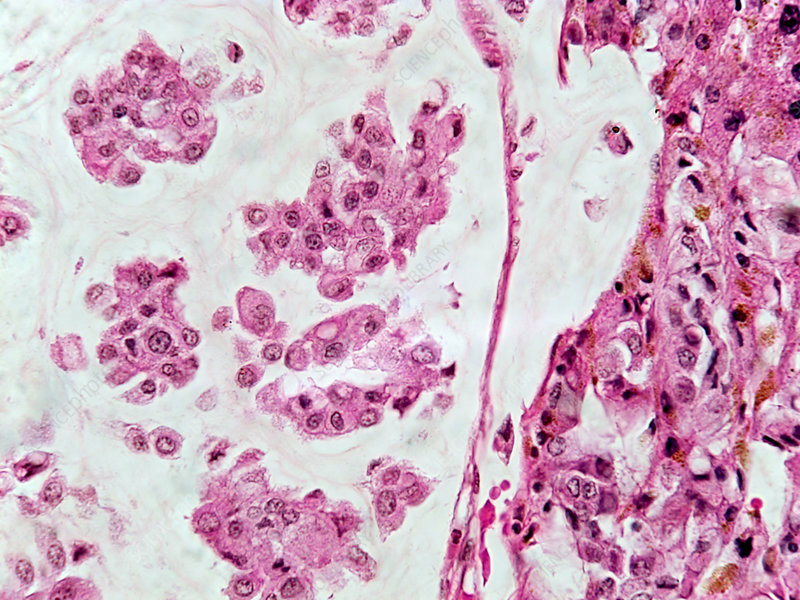 Colloid Liver Tumour, LM