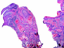Squamous Cell Carcinoma, LM