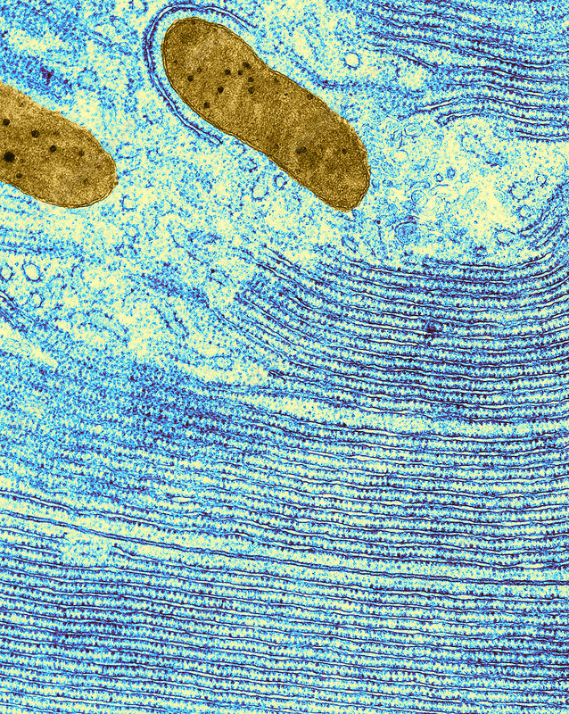 Pancreatic Cell from Bat, TEM