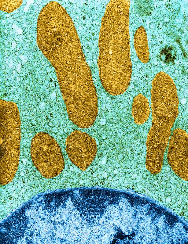 Mitochondria and Rough ER, TEM