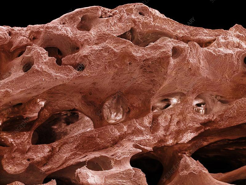 Human Bone, SEM