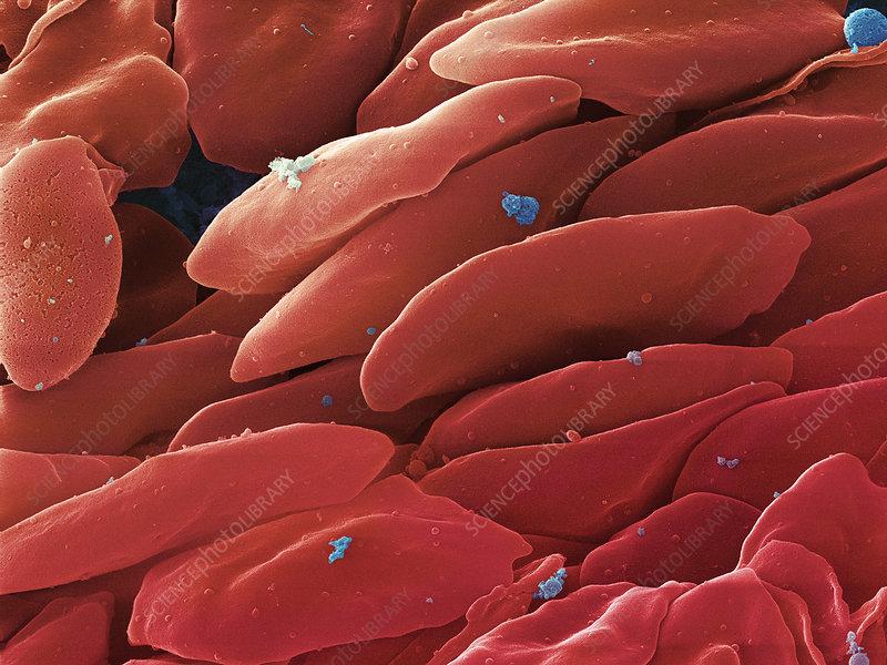 Blood Platelets, SEM