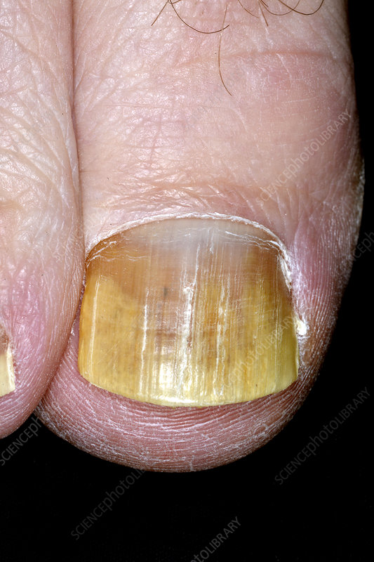 Fungal nail infection after treatment