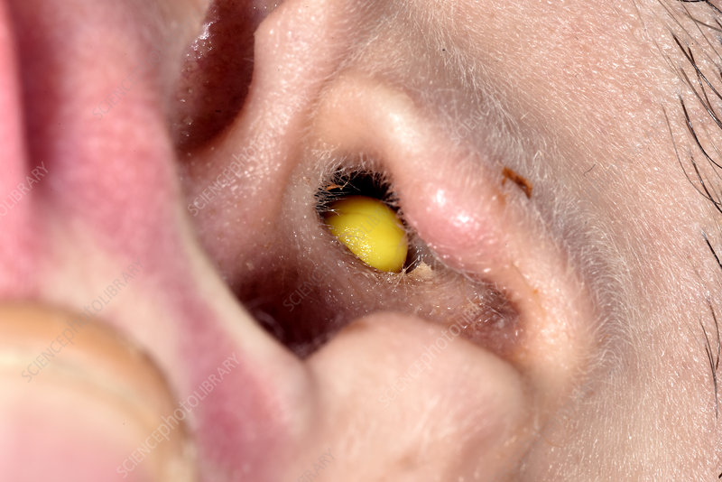 Plastic pellet lodged in ear