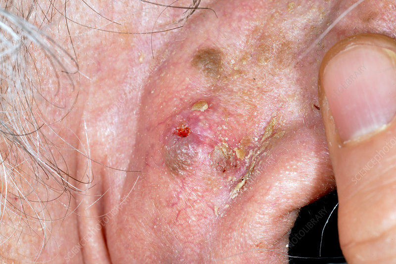 Squamous-cell carcinoma skin cancer