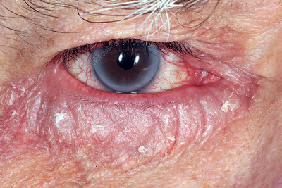 Allergic reaction in glaucoma patient