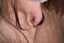 Infected ear piercing