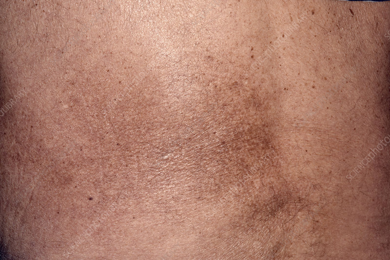 Skin colouration after shingles rash