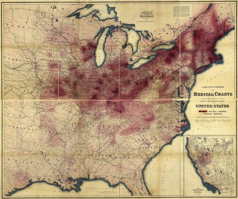 Tuberculosis in the USA, 1874