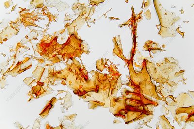 Haemoglobin crystals, light micrograph