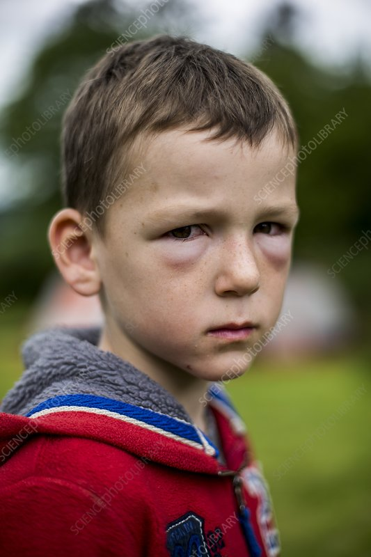 Boy with hay fever allergic reaction